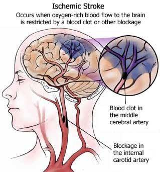 stroke_brain_image_7.jpg