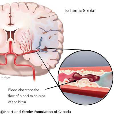 stroke_isc_web.jpg