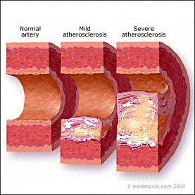 atherosclerosis-1.jpg