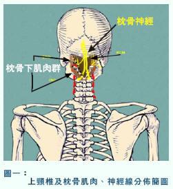cervicoha1.jpg