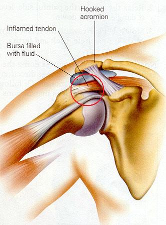 Shoulder%20Impingement%20Syndrome_clip_image001.jpg