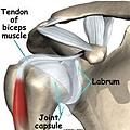 shoulder_labral_tear_causes.jpg