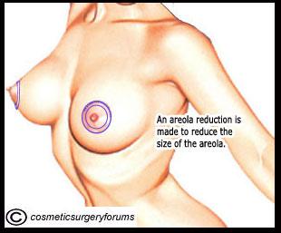 AreolaReduction1