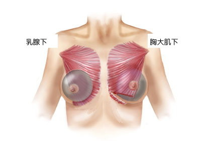 Breast implants above and under the pectoralis muscle