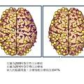 腦霧的圖治療比較