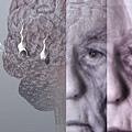 Alzhermer's disease