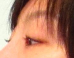 eyes after 3.jpg