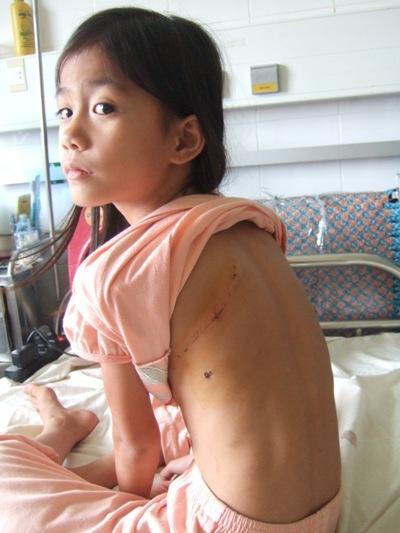 心臟病孩童手術.JPG