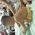 胡文逢第一次手術的傷口.JPG
