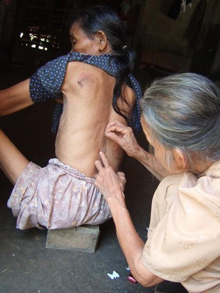 奶奶在給鄰居治病-用小玻璃刺激皮膚.JPG