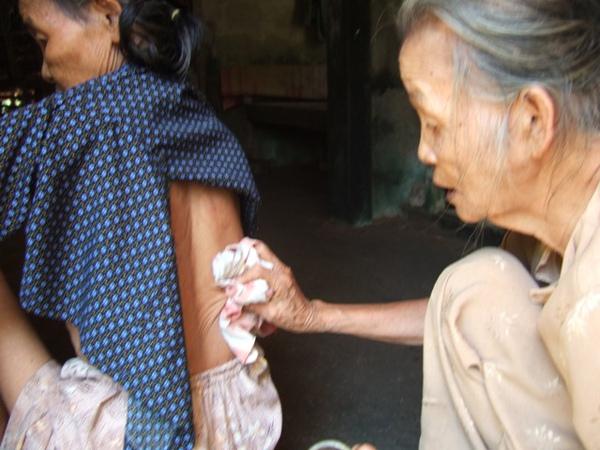 奶奶在給鄰居治病-用破衣服擦血.JPG