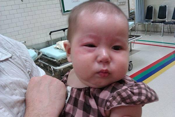 30分鐘後,非常嚴重的過敏啊!立刻去國泰醫院掛急診。醫生建議一歲前都別再讓她碰這兩種食物30min later....swollen face n eye