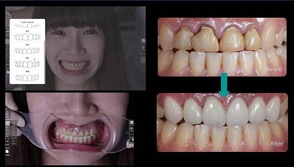 DSD微笑曲線設計.jpg