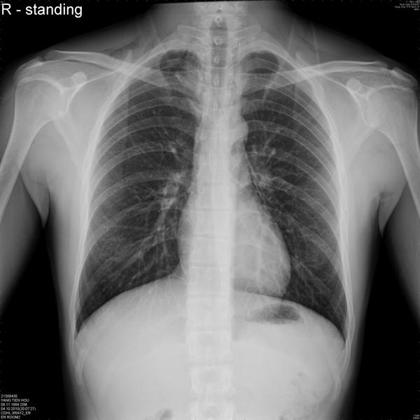pneumomediastinum.jpg