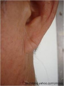 耳垂1-225x300