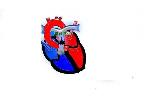 心臟新1圖