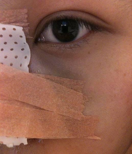 隆鼻術後第一天-眼睛下方瘀青
