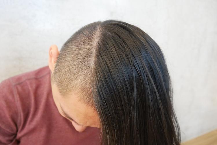 Alpecin-咖啡因洗髮露10.jpg