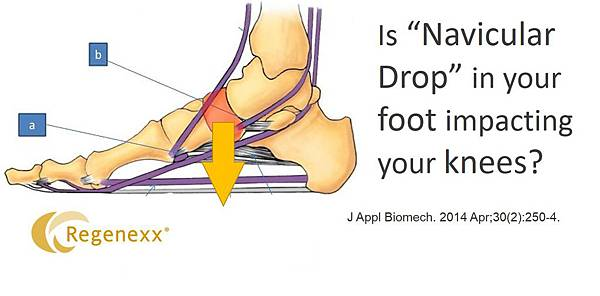 Foot-Arch-Knee-Pain