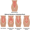 diastasis_recti_illustration3.png