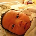 寶寶24d-鬥雞眼