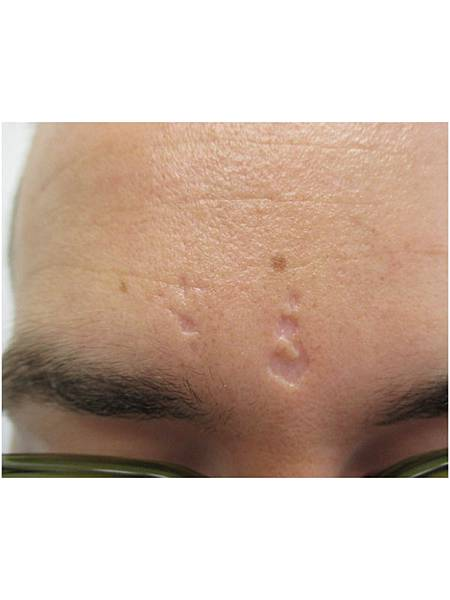 202-herpes-zoster-scars-images