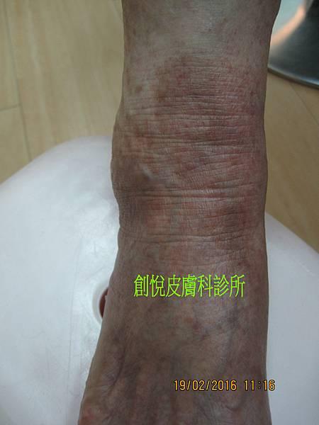 xerosis dermatitis.jpg
