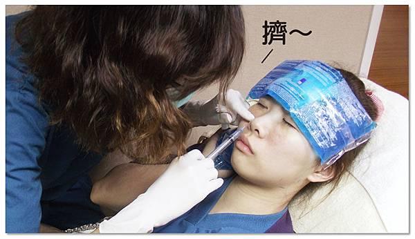 台中玻尿酸肉毒桿菌|菲仕美診所14