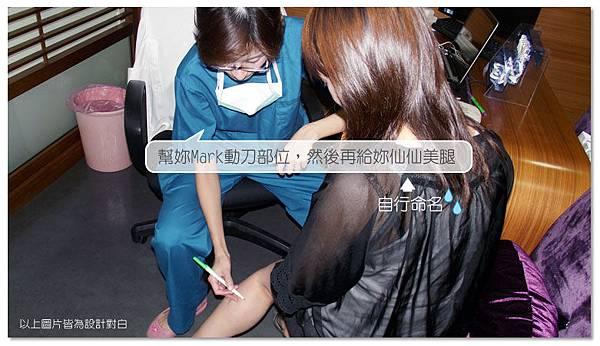 台中纖纖美腿瘦小腿|菲仕美診所05