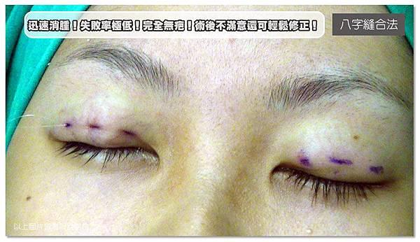 台中雙眼皮手術|菲仕美09