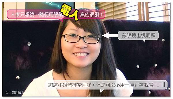 台中雙眼皮手術|菲仕美13