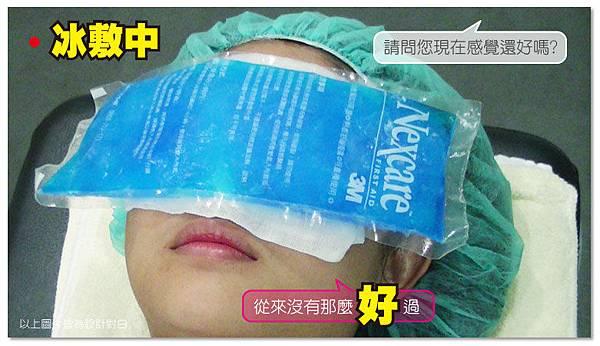 台中雙眼皮手術|菲仕美12