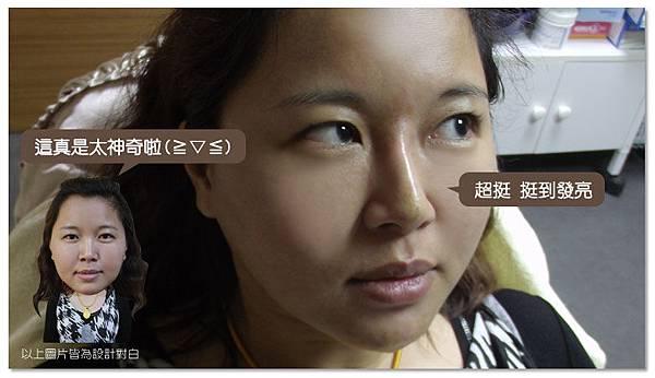 台中微晶瓷 菲仕美08