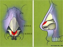 cartilage trim