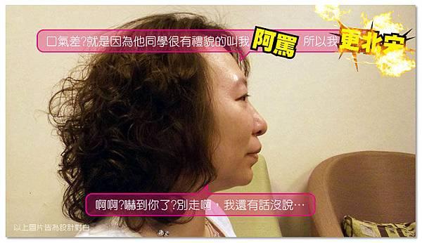 台中電波拉皮|菲仕美04