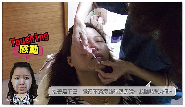 台中微晶瓷 菲仕美06