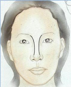 楊醫師隆鼻-3