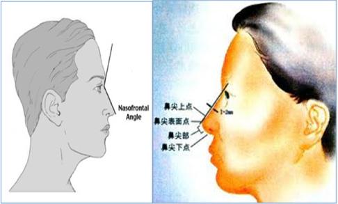 楊醫師隆鼻-5