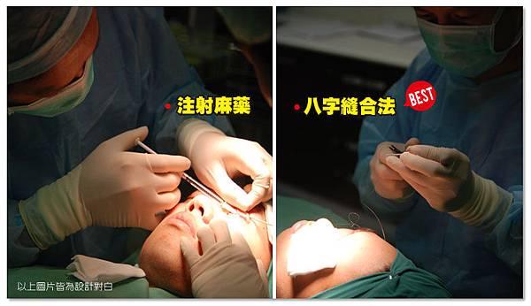 台中雙眼皮 台中雙眼皮手術06