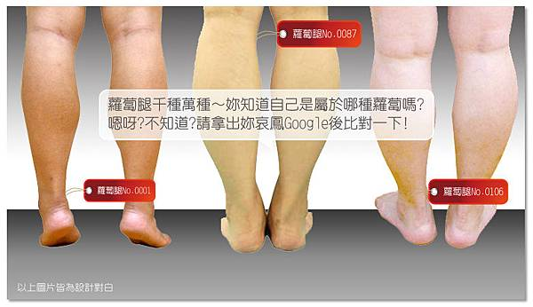 台中纖纖美腿瘦小腿|台中瘦小腿|台中肉毒桿菌瘦小腿03