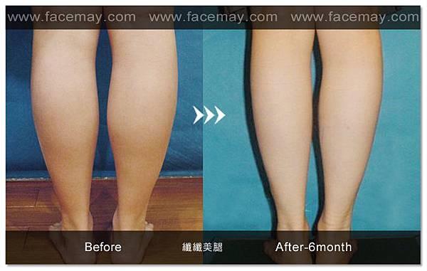 台中纖纖美腿瘦小腿|台中瘦小腿|台中肉毒桿菌瘦小腿10