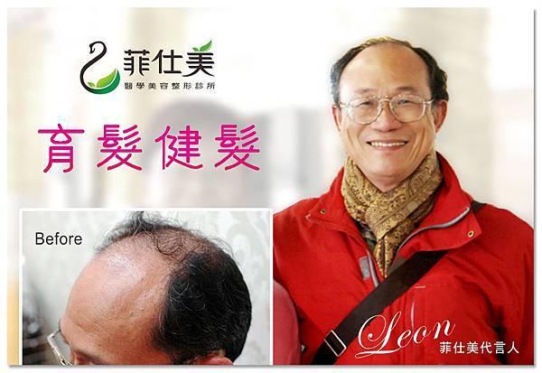 台中育髮|台中健髮|台中落髮治療00