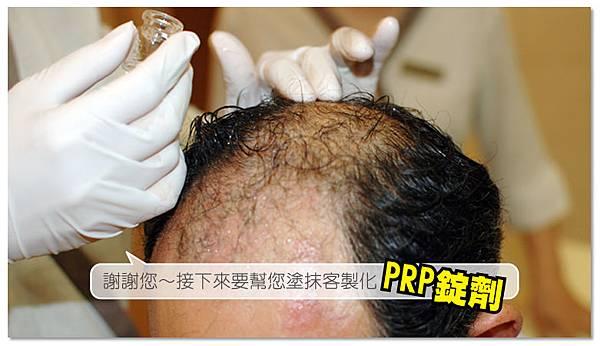 台中育髮|台中健髮|台中落髮治療07