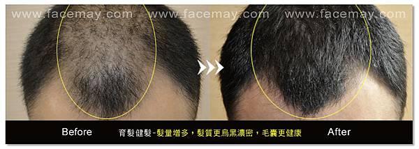 台中育髮|台中健髮|台中落髮治療08