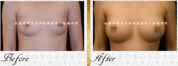 台中隆乳|台中隆乳術後按摩12
