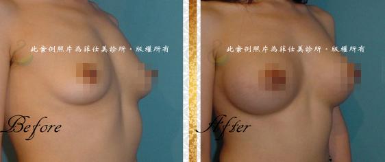 台中隆乳|台中隆乳術後按摩11