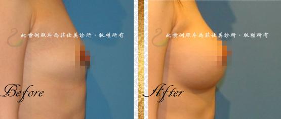 台中隆乳|台中隆乳術後按摩13