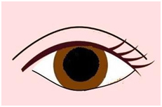 1開放式雙眼皮