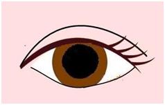 3封閉式雙眼皮