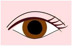 2半開放式雙眼皮